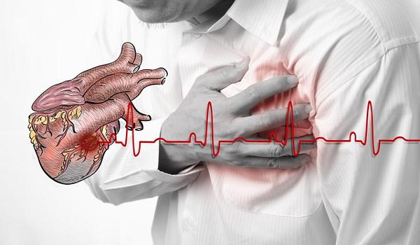 Đau thắt ngực là gì? Nên làm gì khi lên cơn đau thắt ngực?