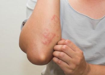 Phát ban da là bệnh gì? Cách khắc phục như thế nào?