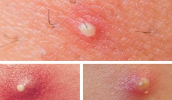Ung nhọt ngoài da và cách phòng ngừa hiệu quả nhất