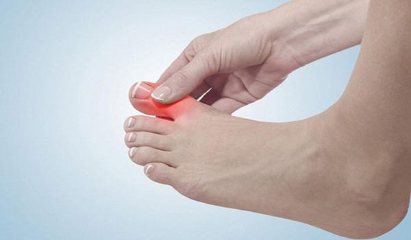 Bệnh đau khớp ngón là gì? Nguyên nhân và cách phòng ngừa