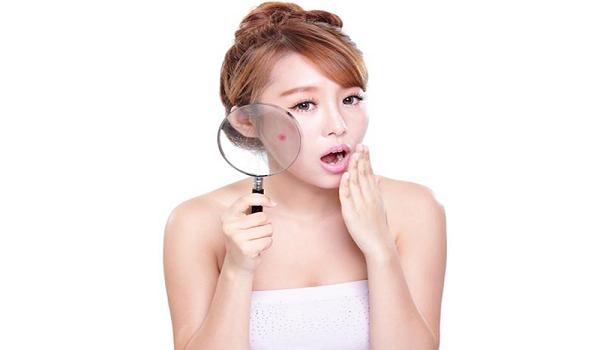 Mụn và nguyên nhân gây ra mụn trên da mà bạn cần biết